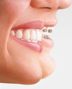 Invisalign or Incognito invisible braces - Manchester Orthodontics