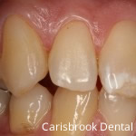 After White fillings - Carisbrook Dental Manchester