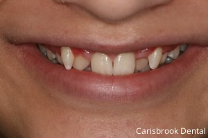 Fixed Braces Manchester