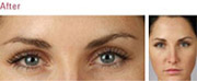 Wrinkle Reduction Treatment Manchester
