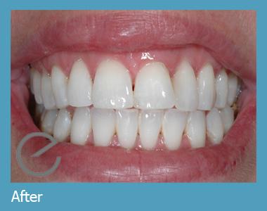 Teeth Cleaning Advice - Carisbrook Dental Manchester