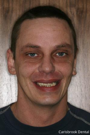 Chris - Carisbrook Dental Manchester