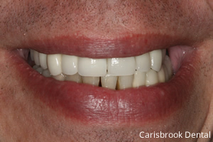 Chris After - Carisbrook Dental Manchester