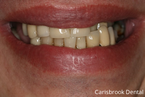 Chris Before - Carisbrook Dental Manchester