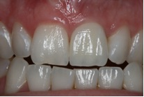 Dental crowns Manchester