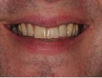 Gum contouring and teeth reshaping - Carisbrook Dental Manchester