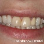 Before Porcelain Veneers - Carisbrook Dental Manchester