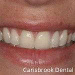 After Porcelain Veneers - Carisbrook Dental Manchester