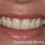 After Porcelain Veneers - Carisbrook Dental Manchester