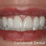 Removable Braces Manchester