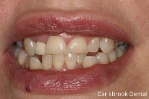 Kathryn Before   Manchester Dentist