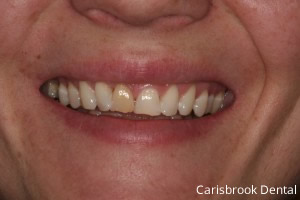 Before Porcelain Veneers - Carisbrook Dental Manchester