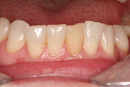 Teeth Whitening Manchester
