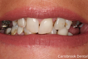 Before Cosmetic Dentistry| Carisbrook Dental