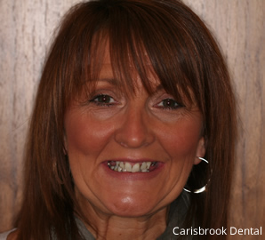 Before Cosmetic Dentistry | Carisbrook Dental