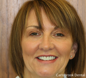 After Cosmetic Dentistry | Carisbrook Dental