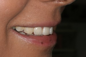 Tooth Re-shaping - Carisbrook Dental Manchester