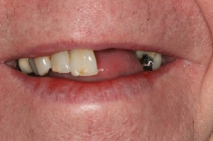 Before Dental Implants - Dental Implants Manchester specialists