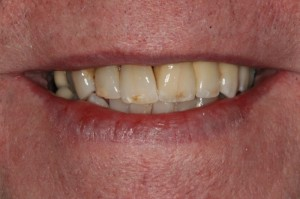 After Dental Implants - Dental Implants Manchester specialists