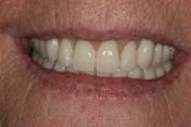 new dentures carisbrook, dentist Manchester