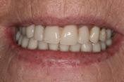 Pre op dentures carisbrook, Dentist Manchester