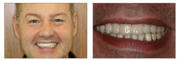 Half Price Dental Implant Consultation