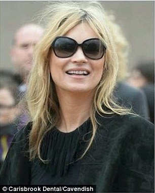 The image shows Kate Moss with Discoloured teeth.