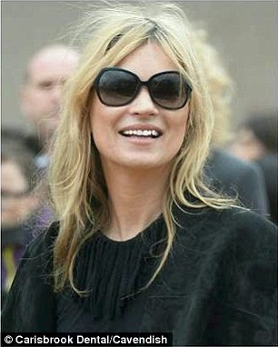 The image shows Kate Moss with her discoloured teeth edited to make them appear whiter.