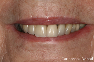 pauline's teeth after treatment